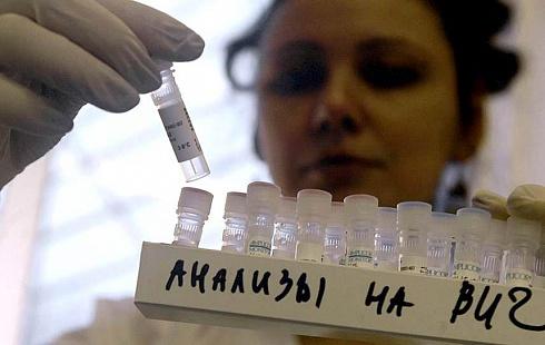 73 новых случая ВИЧ-инфекции выявили на Камчатке
