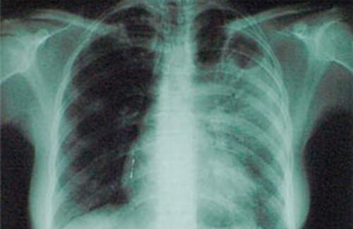 Туберкулез предлагают лечить стволовыми клетками