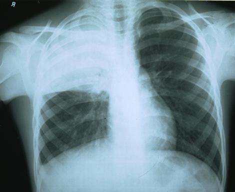 Мамам не заметку: как распознать пневмонию у ребенка