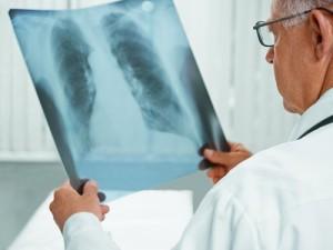 В Литве педагог заразила туберкулезом 77 подопечных