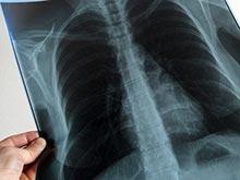 24 марта отмечается Всемирный день борьбы против туберкулеза