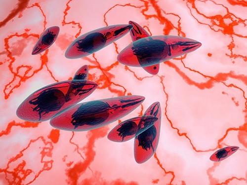 Вспышки неконтролируемой агрессии могут быть связаны с токсоплазмозом