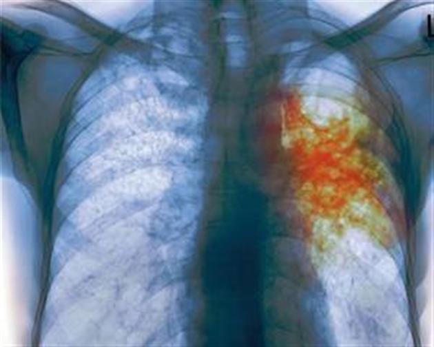 Туберкулез: заболеваемость растет, летальность увеличивается