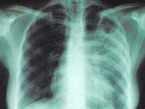 Как уксусная кислота способна уничтожить бактерии, вызывающие туберкулез