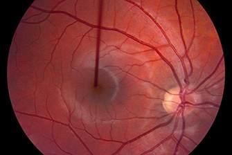 Атрофия зрительного нерва: что нужно знать?