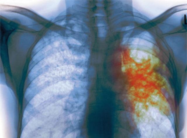 Вакцина против туберкулеза пригодится для лечения астмы