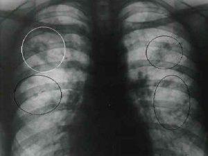 Ученые создали лекарство от устойчивой формы туберкулеза
