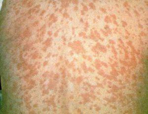 После кори иммунитет ребенка может оставаться уязвимым несколько лет, а не недель
