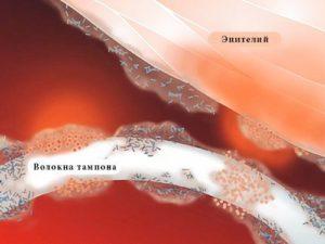 Испытания вакцины от синдрома токcического шока прошли успешно