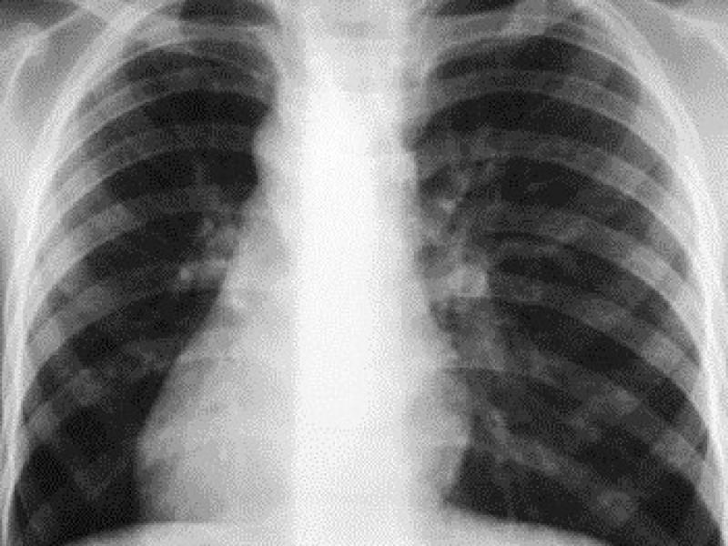 Появилась возможность диагностировать туберкулез моментально
