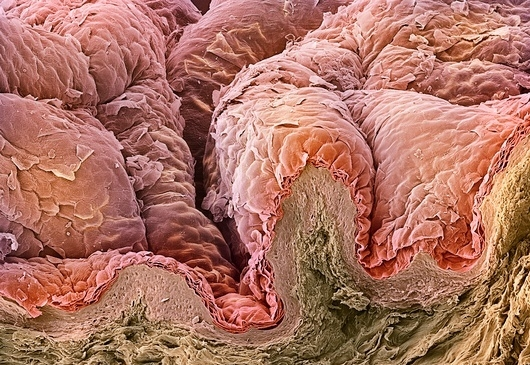 Из кожи людей можно получить антибиотик