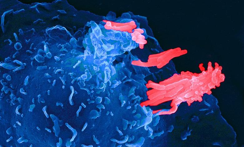 Найдено новое средство лечения дремлющего туберкулеза