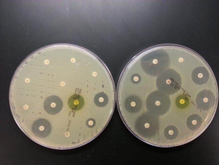Устойчивость бактерий к антибиотикам – древнее явление