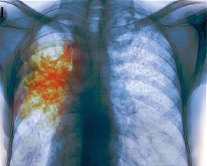 На борьбу с туберкулезом Волгоградская область получит свыше 62 млн рублей