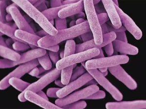 Предложен тест для быстрой диагностики туберкулеза