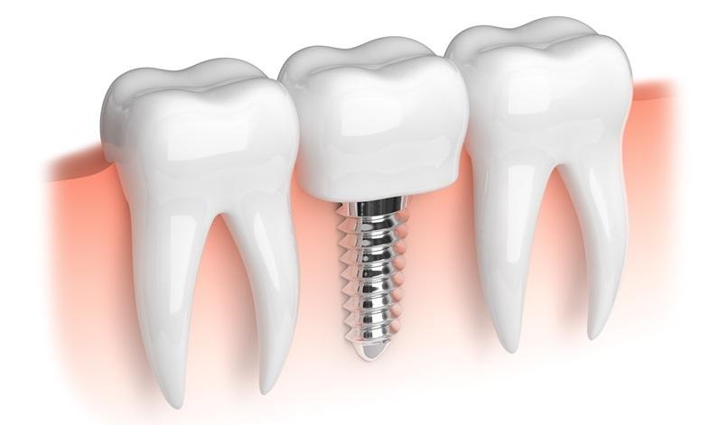 Имплантация зубов — передовая методика восстановления челюстного ряда