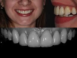 Подсыпка костной ткани для качественной имплантации зубов
