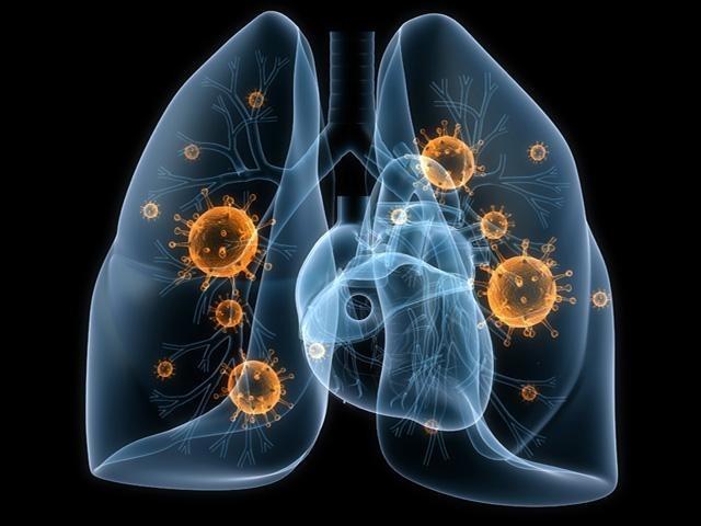 Пневмония: заразен ли недуг?