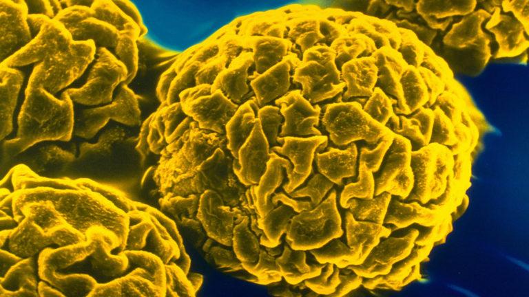 Шесть российских лабораторий по диагностике полиомиелита получили сертификаты ВОЗ