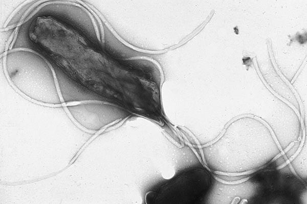 Новый метод поможет справиться с супербактериями