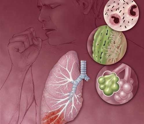 Что такое пневмония и чем она опасна? — ответы специалистов