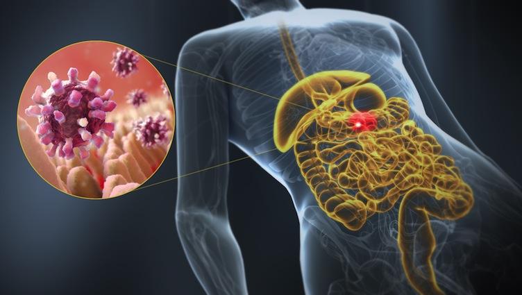 Миру угрожает новая эпидемия кишечного заболевания