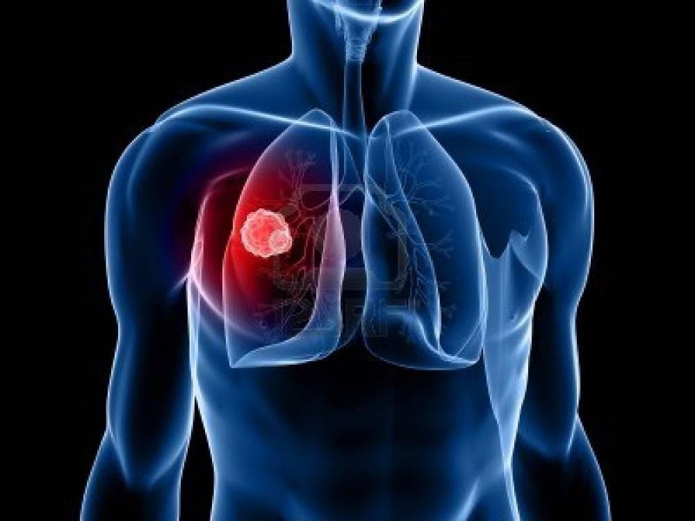 Ученые синтезировали «убийцу» туберкулеза