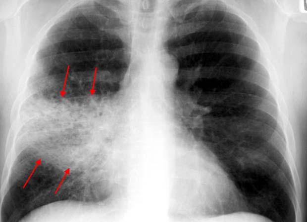 Открытие: посещение стоматолога снижает риск пневмонии
