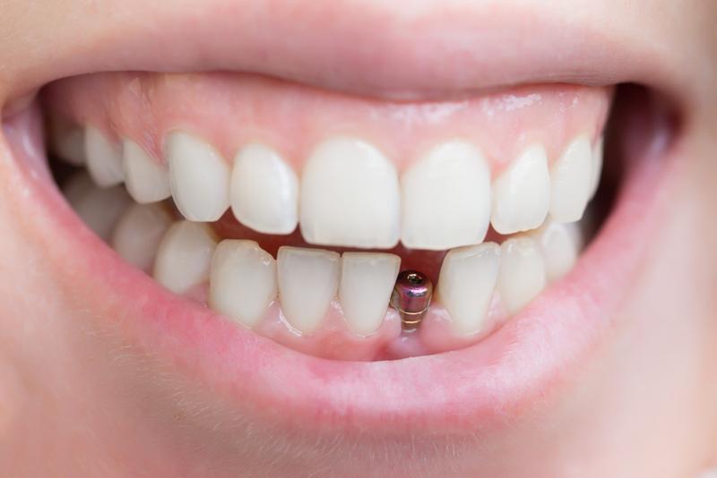 Восстановление зубов с помощью зубного имплантата