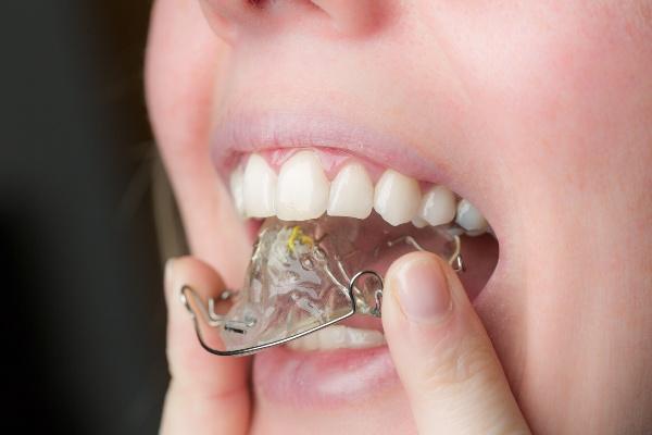 Как можно выровнять зубы без брекетов