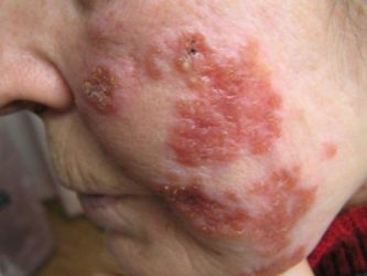 Туберкулез кожи: симптомы, лечение
