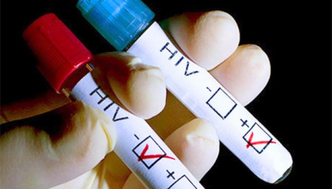 Минюст РФ выступил против введения учета ВИЧ-инфицированных