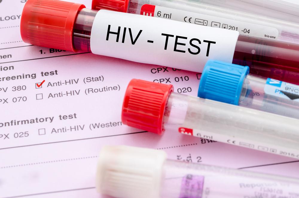 Две трети новых случаев ВИЧ в Европе приходится на Россию