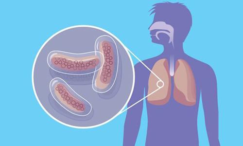 Туберкулез мутирует и распространяется по планете
