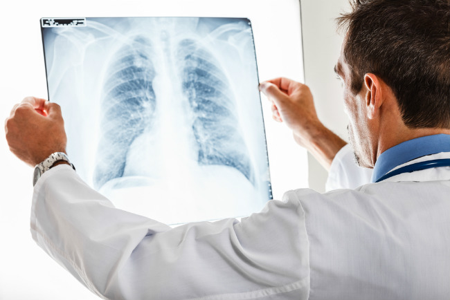 Почему в Омске растет число больных пневмонией?