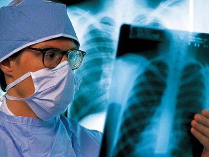 В Башкирии туберкулезом заражены свыше 26 тысяч человек