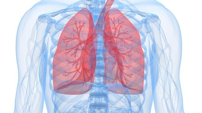 Что объединяет ХОБЛ и пневмонию?