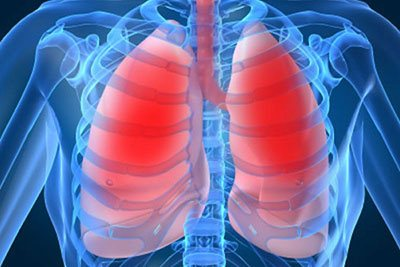 Питание при хронической пневмонии