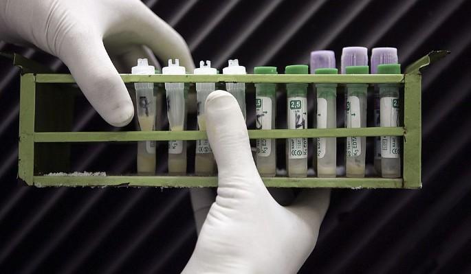 Найден новый способ выявить ВИЧ