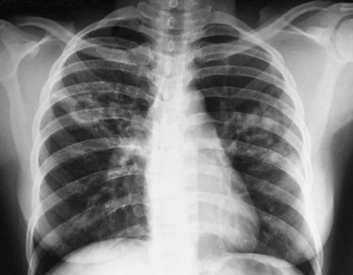 Экспериментальный противотуберкулезный препарат SQ109 доказал свою эффективность