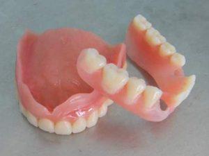 Бразильские ученые нашли необычный способ дезинфекции зубных протезов
