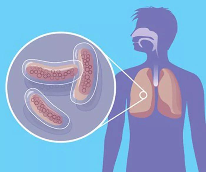 Ученые узнали, почему непросто вылечить туберкулез