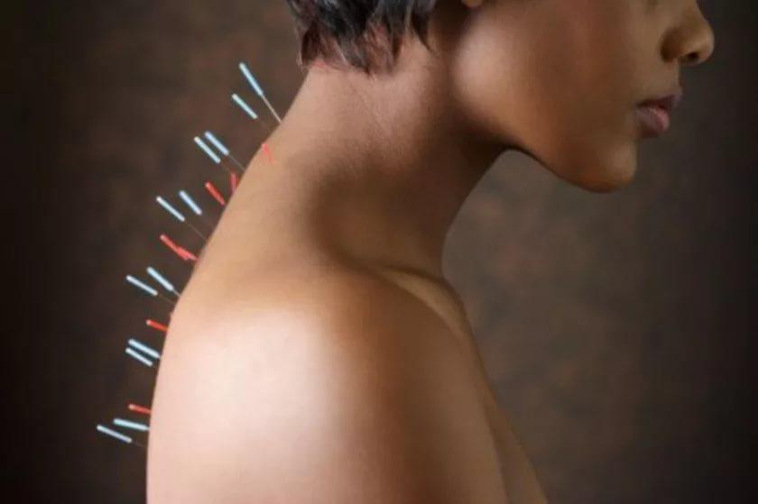 Иглоукалывание может быть источником тяжелых заболеваний