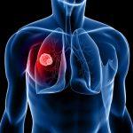 Росздравнадзор: ситуация с АРВ-препаратами в регионах стабилизируется к маю