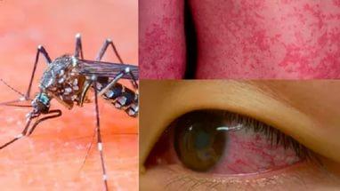 Вакцина от вируса Зика почти готова