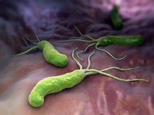 Рак, гастрит и аллергия: последствия соседства с Helicobacter pylori