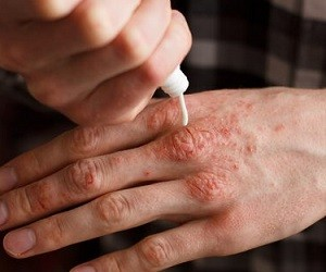 ТОП-6 домашних кремов, которые помогут вылечить псориаз