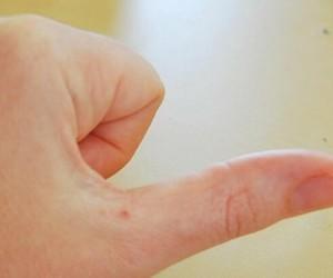 Папилломавирус человека: что необходимо знать каждому?..