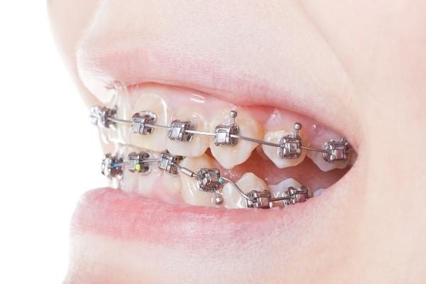 Разновидности брекетов в современной стоматологии и их особенности