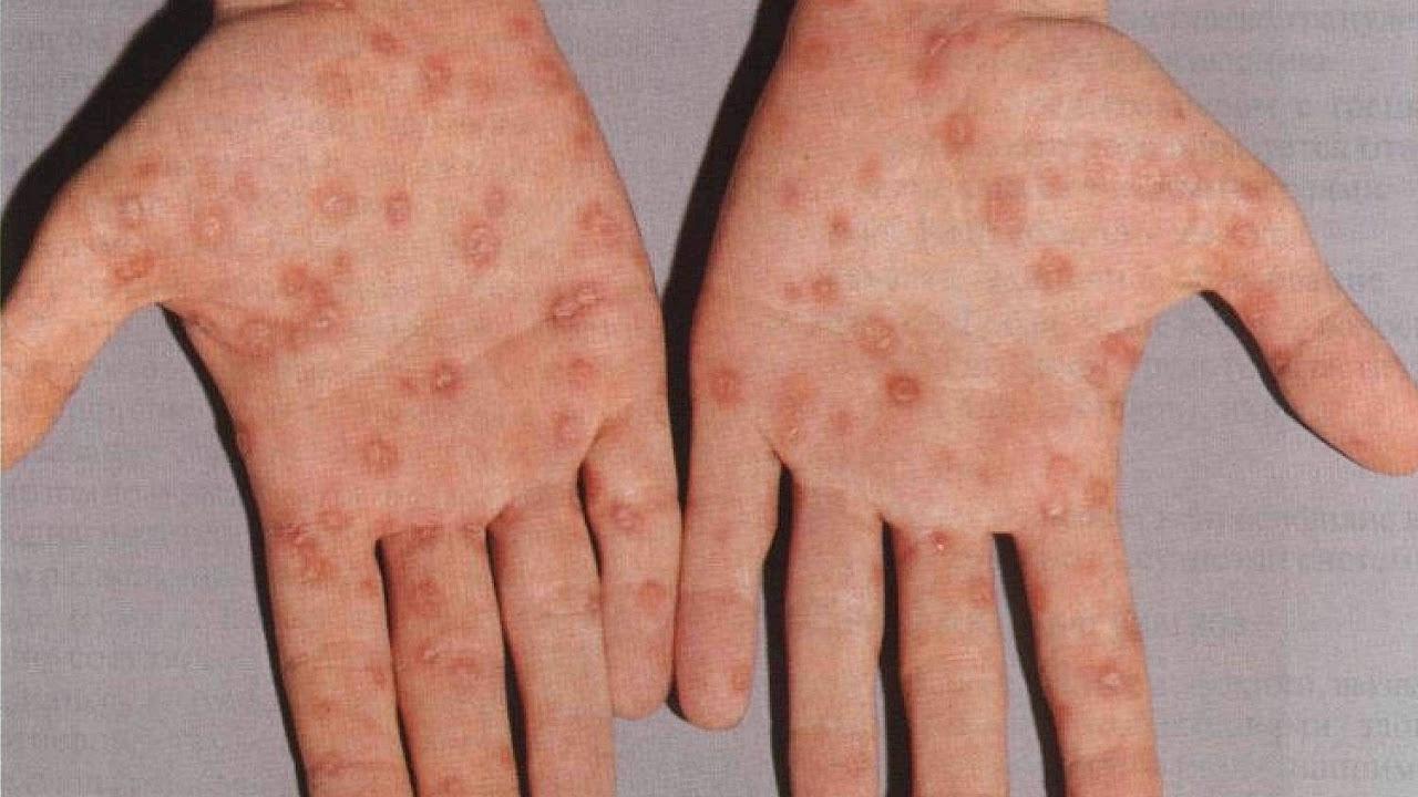 Сифилитическая сыпь: признаки и лечение